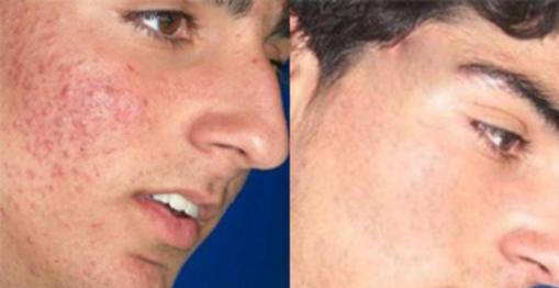 acne juvenil.png
